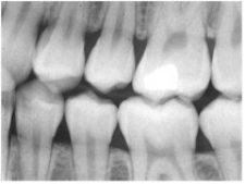 dental-X-rays