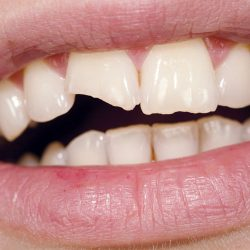 chipped tooth 500