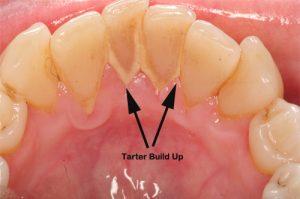 TeethTarter