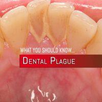 DentalPlague
