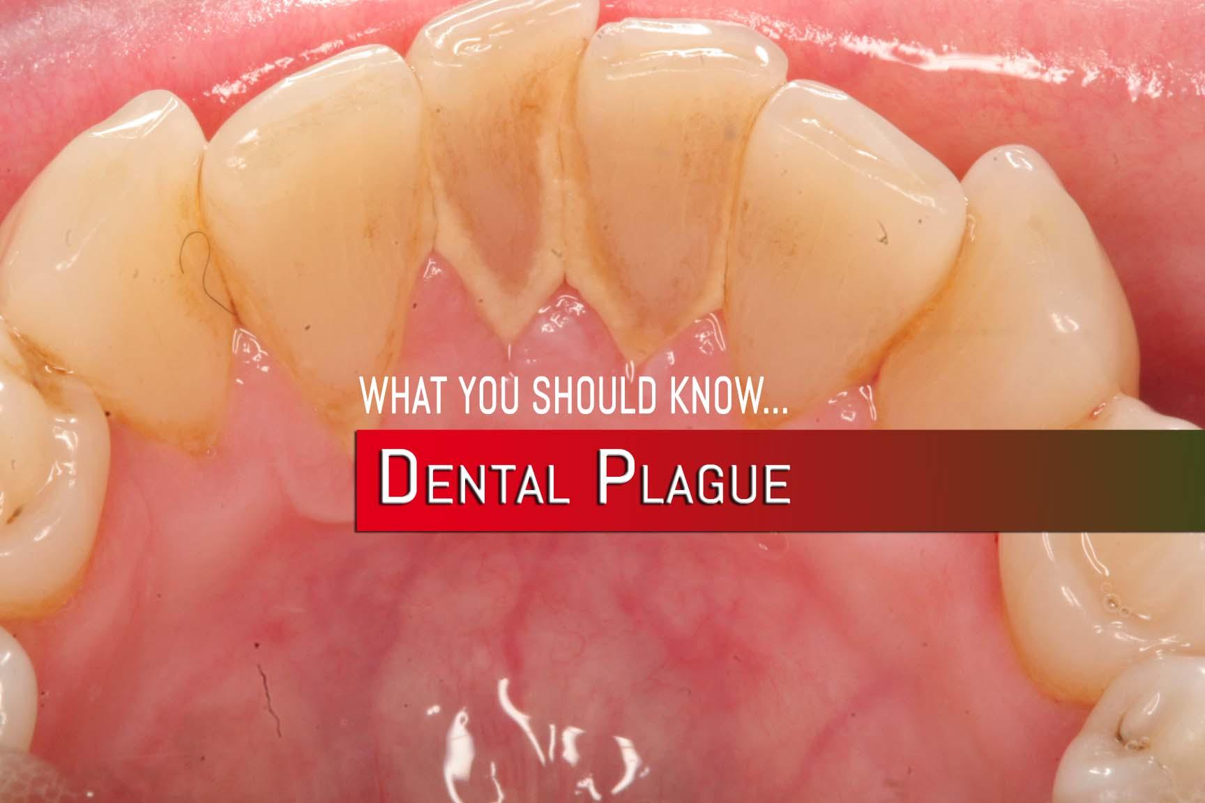 DentalPlague
