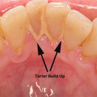 Teeth&Tarter