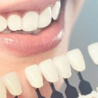 Why You Should Frequently Visit Your Cosmetic Dentist