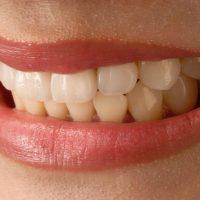 asian-smile-3672997_1280
